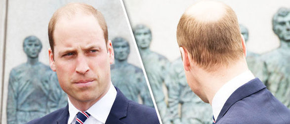 balding-at-the-crown