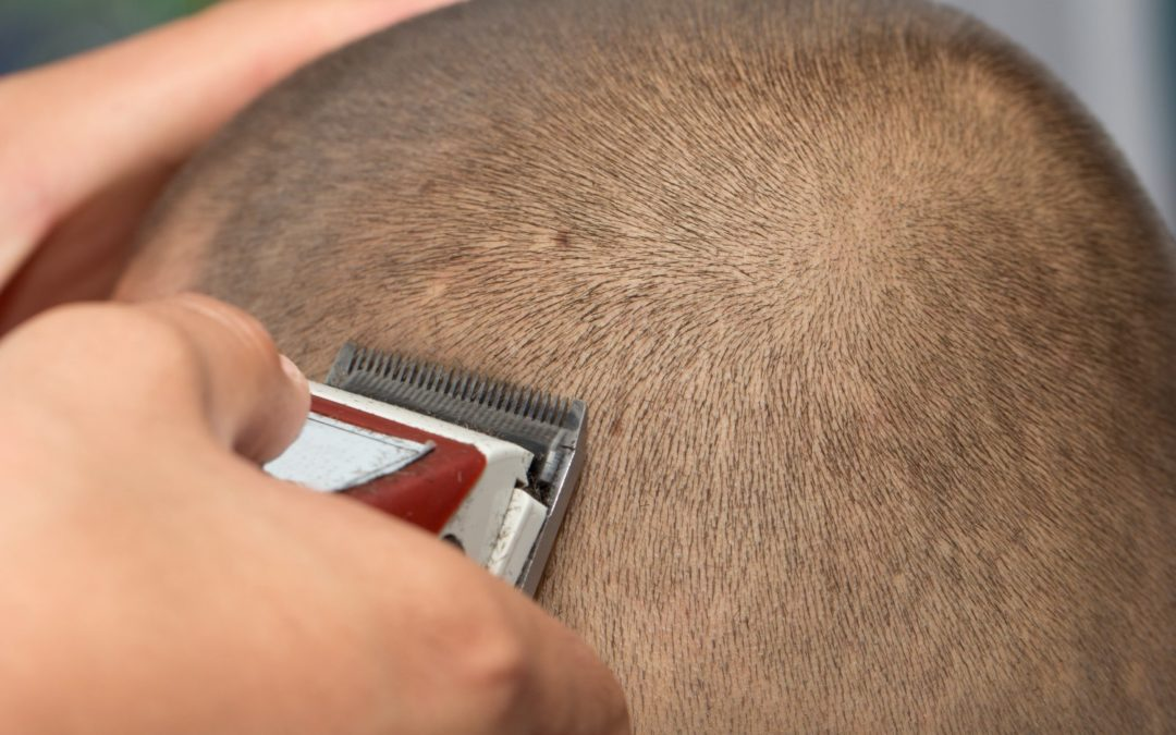 Can bald people get lice?