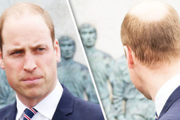 Balding at the Crown – What to Consider