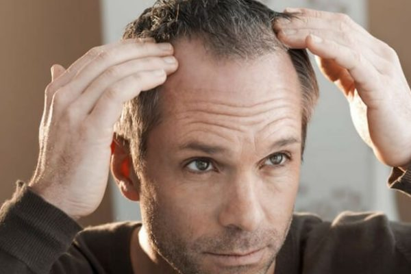 Are you losing hair due to stress?