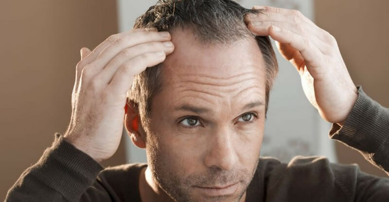 losing-stress-to-hair-loss