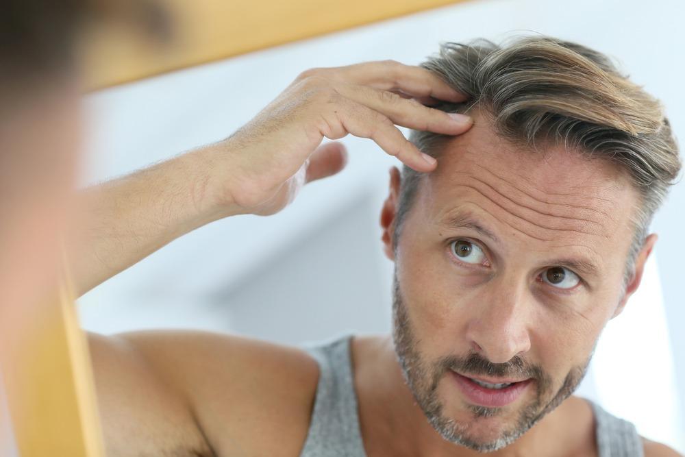 Best Hair Loss Shampoo – Buyer's Guide 2018