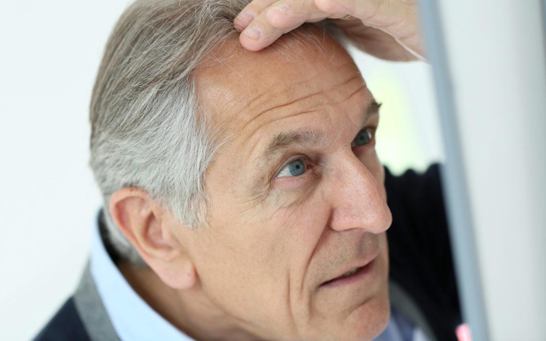 How the Balding Gene really works