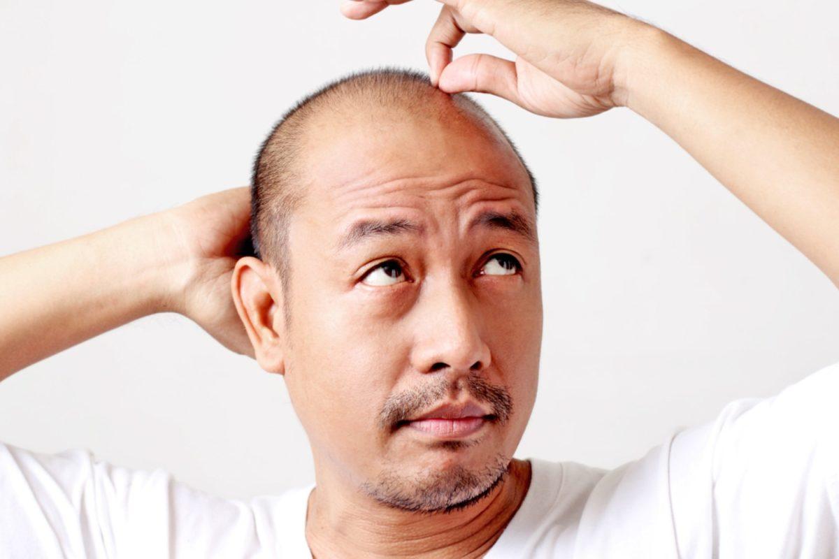 hair-loss-shampoos