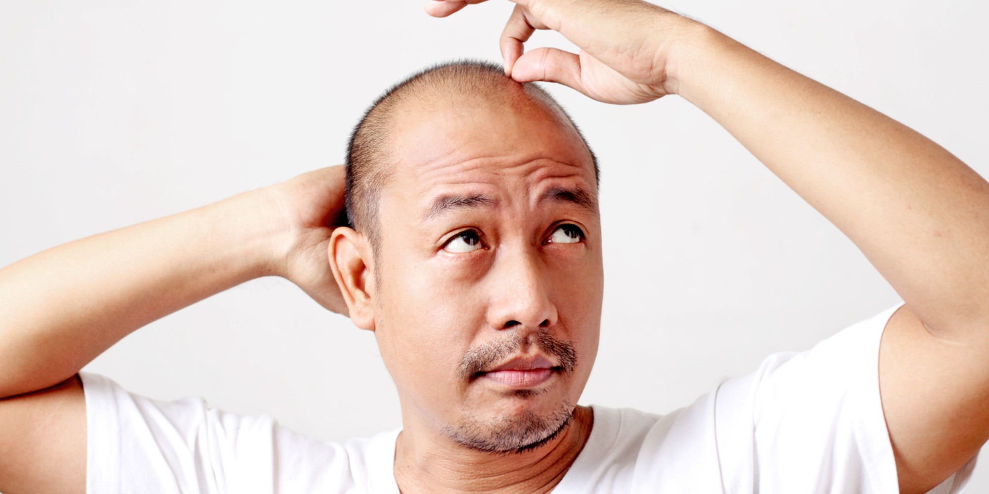 Should you invest in a Minoxidil Shampoo if you're going bald?