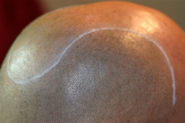 Can you stay bald permanently?
