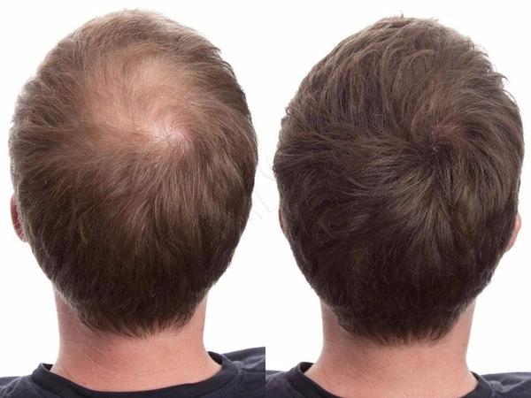 Toppik vs Caboki vs Infinity vs Nanogen – Best Hair Fibers